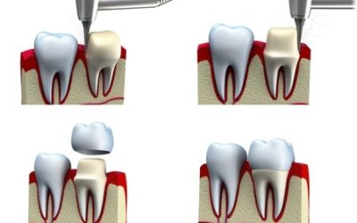 One-Visit CEREC Crowns vs. Traditional Crowns
