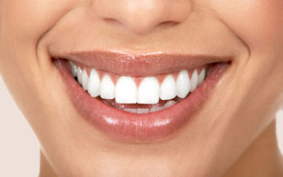 Straight Talk About Invisalign and Traditional Braces