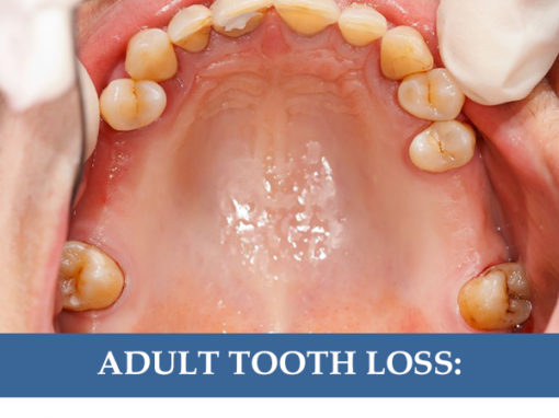 Adult Tooth Loss: Prevention and Replacement Options