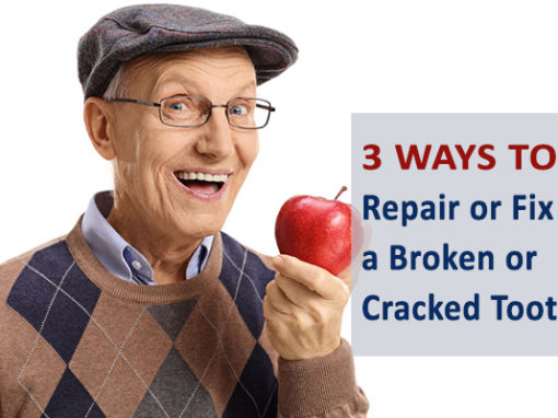 Ways to Repair or Fix a Broken Tooth or Cracked Tooth