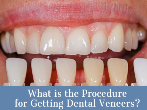 What's the Procedure for Getting Dental Veneers?
