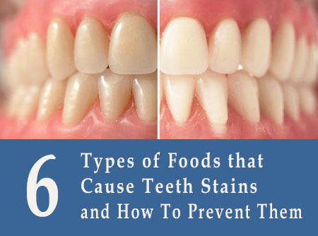 Types of Foods that Cause Teeth Stains and How To Prevent Them