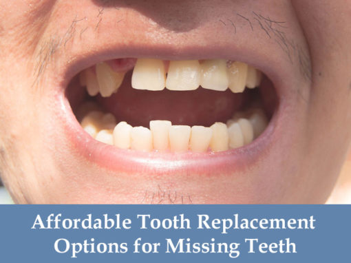 Affordable Tooth Replacement Options for Missing Teeth
