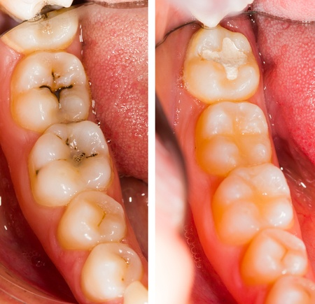 Reasons For Tooth Fillings