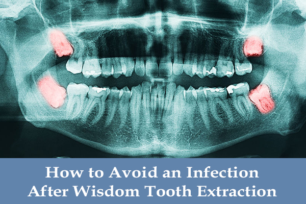 How To Avoid An Infection After Having A Tooth Pulled Or Wisdom Tooth Extraction